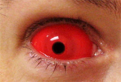 Red Sclera